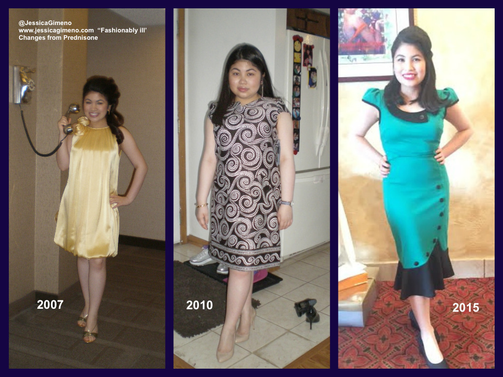 Prednisone Roller Coaster: My Weight Goes Up & Down Frequently